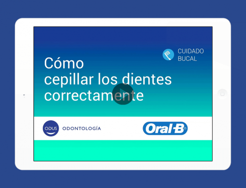 Odus – Video de Prótesis dental fija
